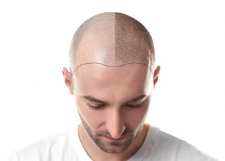 All You Need to Know Before Getting a Hair Transplant