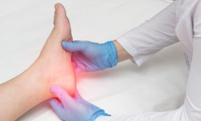 Plantar Fasciitis Cause and How to Prevent it