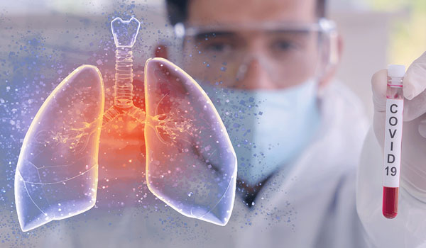 Respiratory Health In Times of COVID-19